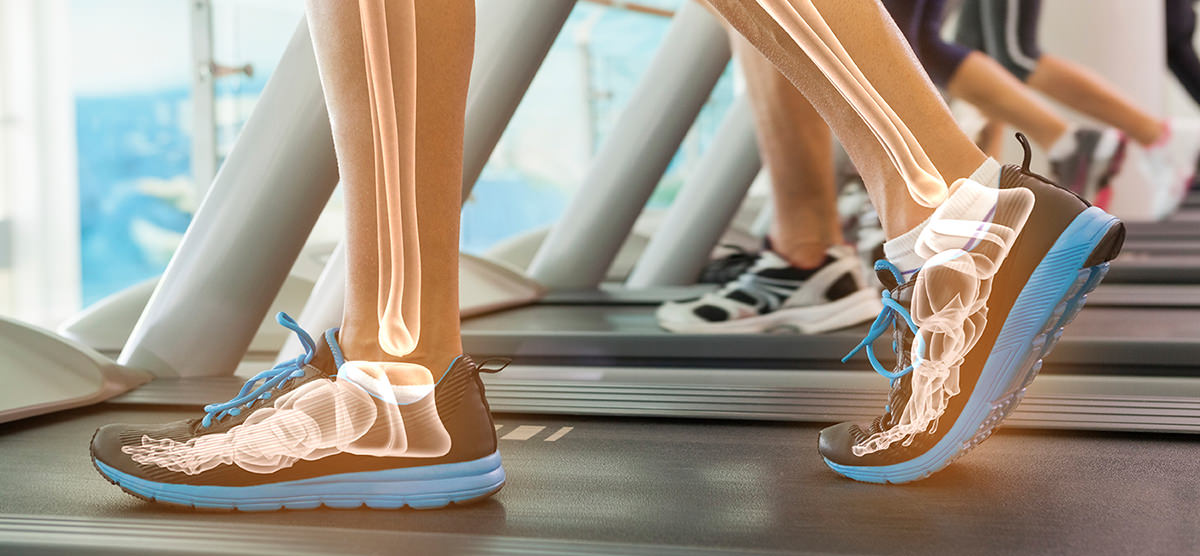 Gait-analysis-walking-treadmill-xray-bones